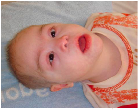 A child with Chédiak-Higashi and trisomy 21 syndromes | RCSI