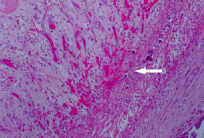 Primary peritoneal carcinoma: an uncommon entity | RCSI